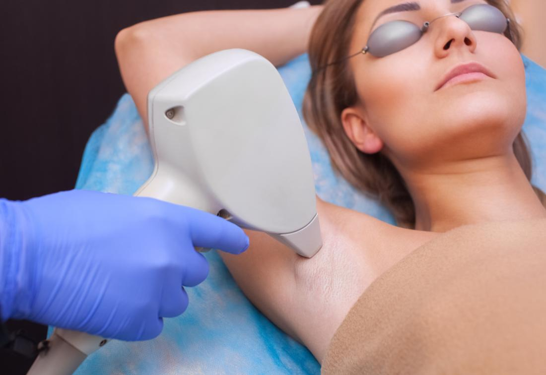 Important Things One Should Know About Laser Hair Removal